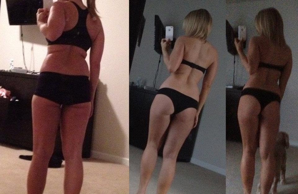 Brazil Butt Lift Results- Bombshell Dynasty
